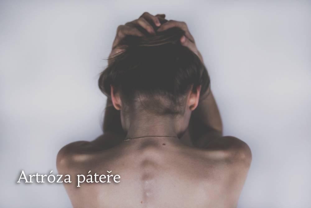 artróza páteře